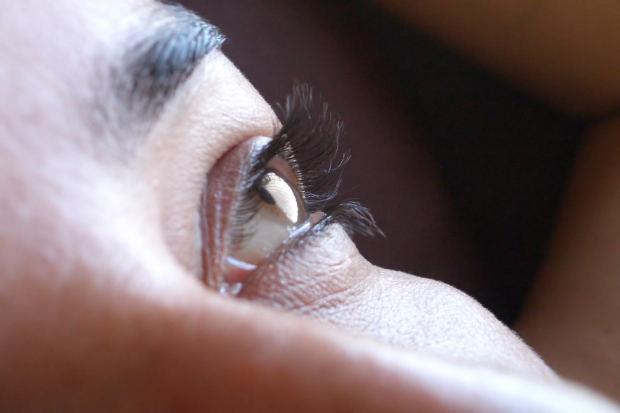 sad-one-eye-woman